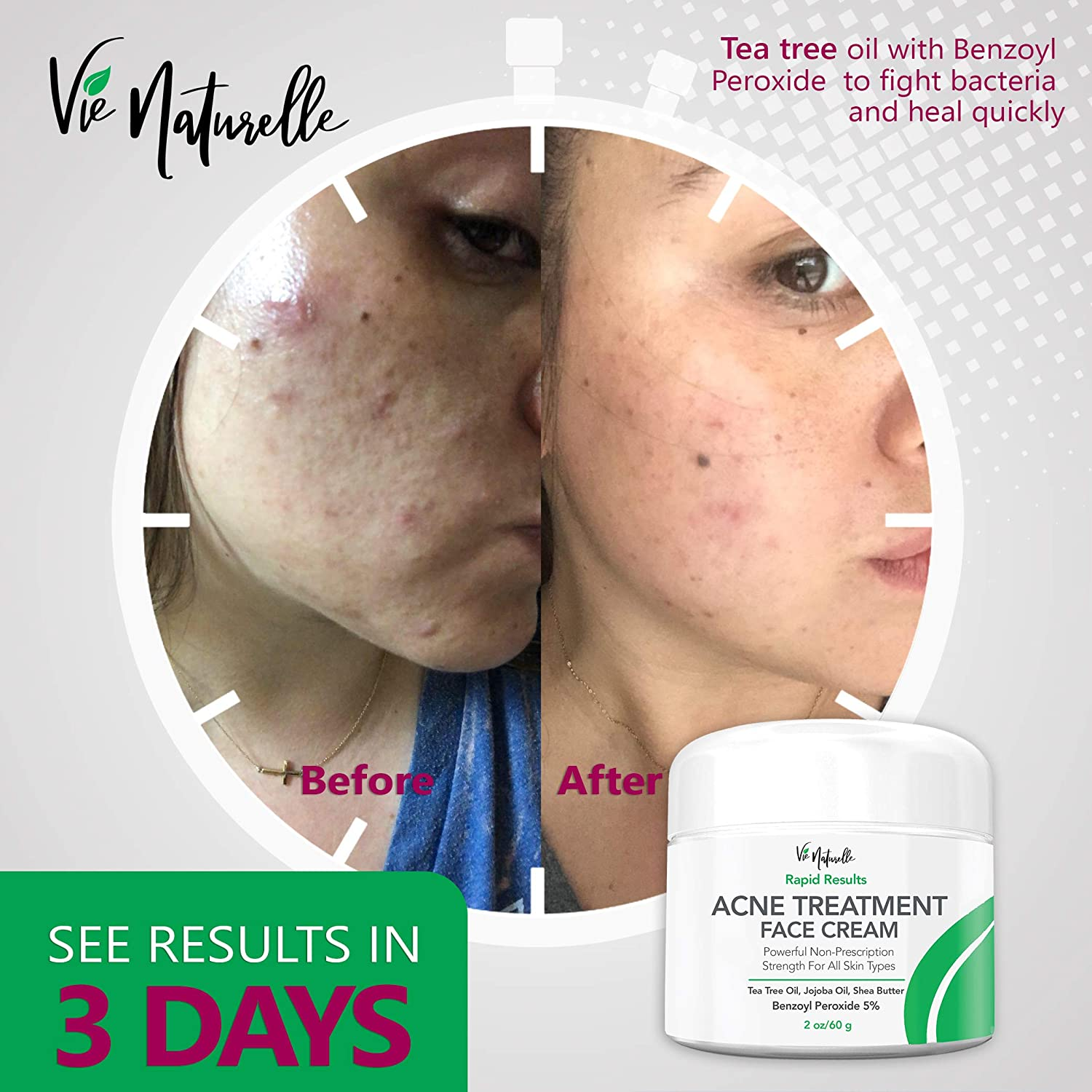 Replace Useless Acne Cream With Vie Naturelle Cream