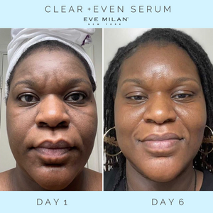 Clear + Even Serum