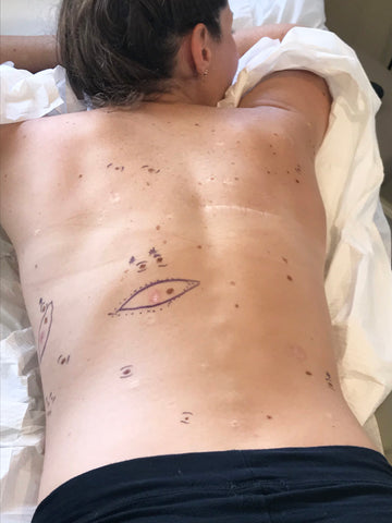 Lynsey Pre Procedure Markings Melanoma Skin Cancer Excision