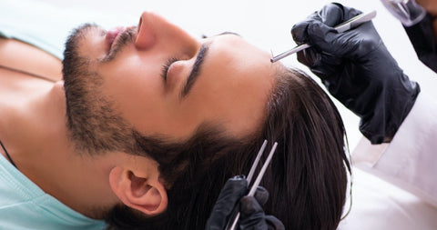 man receiving a hair transplant instead of using low level laser therapy