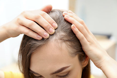 young woman showing the hair she's losing around her hairline