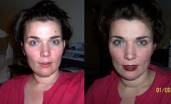 Moles on Face - Rachel used Wart & Mole Vanish to naturally remove the moles on her face