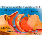 anti-snoring-nose-clip-how-it-works