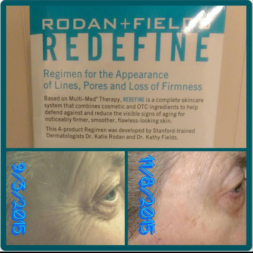 Amazing Rodan + Fields Results