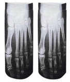 Skeleton Socks
