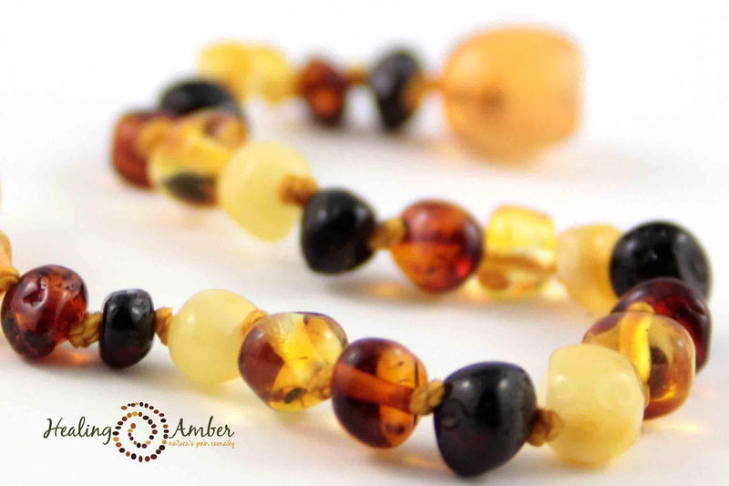 "Baltic Amber Healing Necklace - Adult Size 20""-22"""