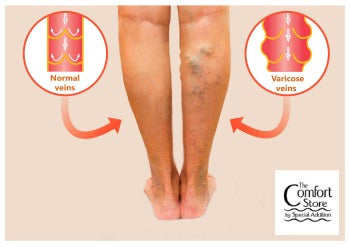 Learn The Number 1 Treatment for Varicose Veins