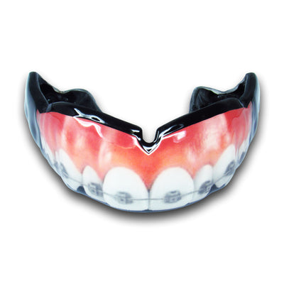 <span>Teeth w/ Braces</span> Mouthguard | Mouthpiece Guy