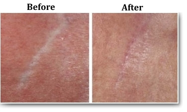 remove skin scar with skin needling