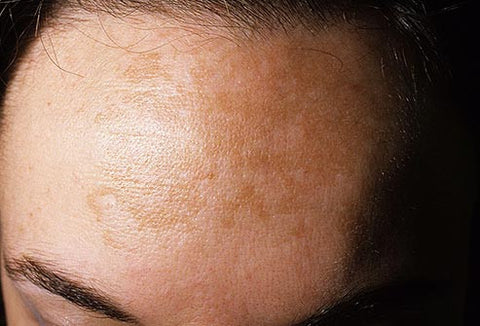 How to treat melasma (aka 'the mask of pregnancy')