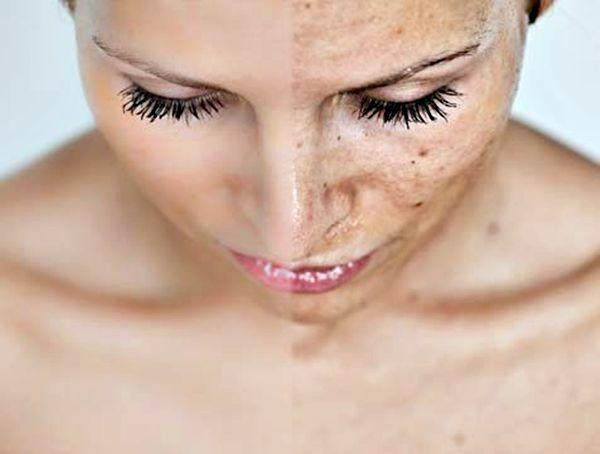 Pregnancy Skincare: What is pregnancy melasma?