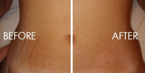 Fan Q&A: What is the best cream to fade stretch marks?