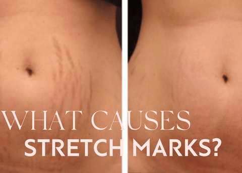 itchy stretch marks on stomach