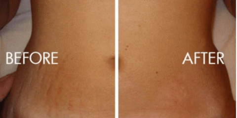 stretch mark before and after picture