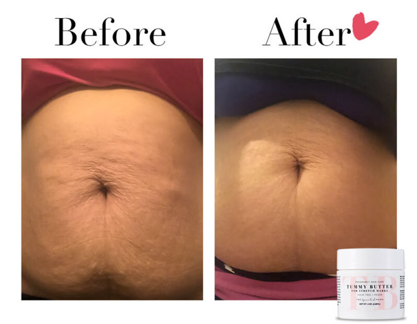 tummy butter results by The Spoiled Mama