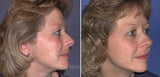 Microdermabrasion - Face- Five Sessions- $283.25