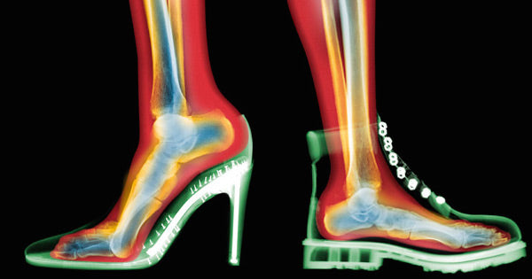 How Shoes Hurt You & Why Standing Barefoot is Healthier