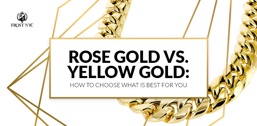 Rose Gold vs. Yellow Gold: How to Choose What Is Best for You