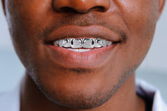 GOLD 6 TOOTH  DIAMOND GRILLS