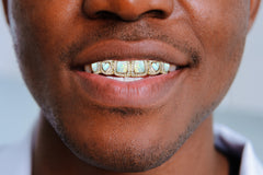 GOLD 8 TEETH DIAMOND AND OPAL GRILLS