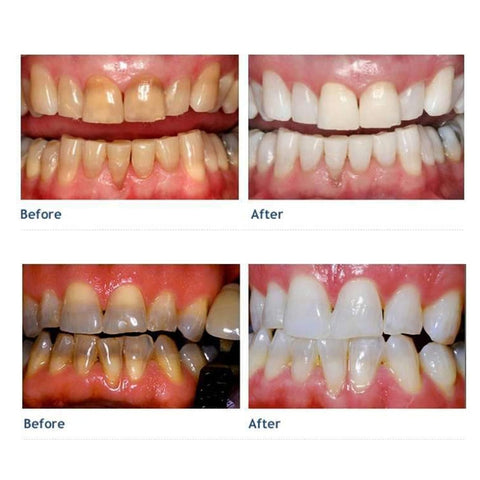 Image of Pro Smile Teeth Whitening Kit - Your Lifestyle Corner
