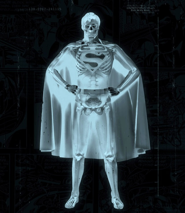JJ Adams - 'Superman' - Framed Limited Edition Print