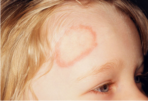 Ringworm! What is it, and How do We Get Rid of it?