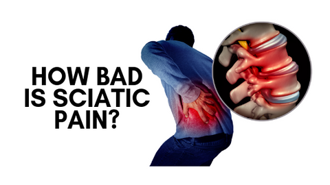 How Bad is Sciatic Pain?