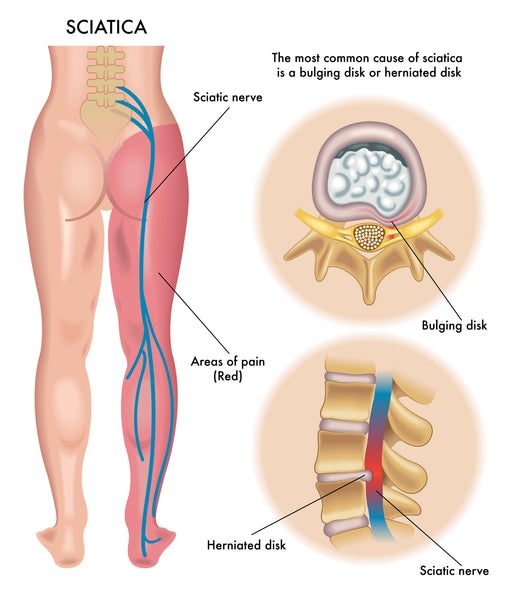 What Causes Sciatica To Flare Up Top 10 Triggers To Avoid Easy Posture Brands