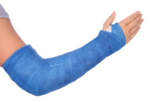 arm-fracture-treatment