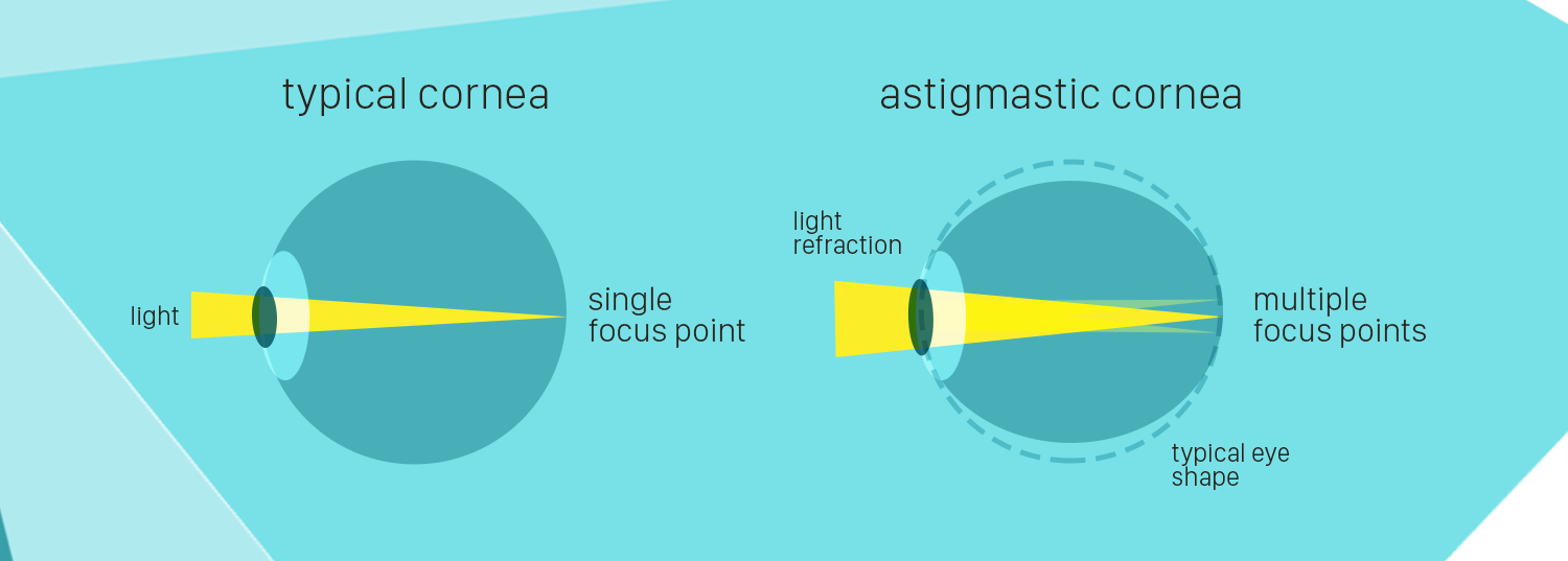 What is Astigmatism - how does it compair to a normal eye