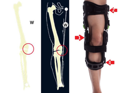 Valgus off-loading brace for Right Leg