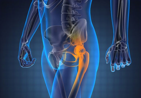 osteoarthritis of hip joint on x ray