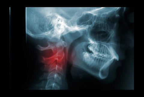 Neck Fracture
