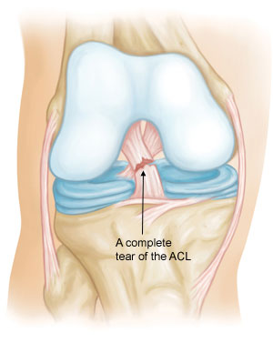 Anterior Cruciate Ligament (ACL) Injuries-2
