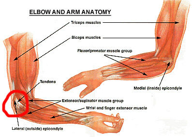 Elbow-Forearm Pain