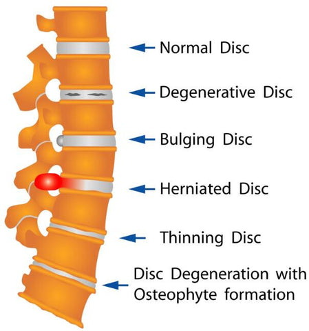 herniated disc