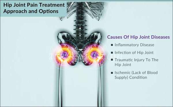 Hip Joint Pain Treatment Approach