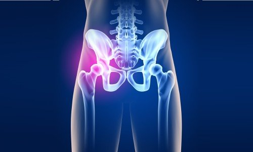 Osteoarthritis of the hip joint