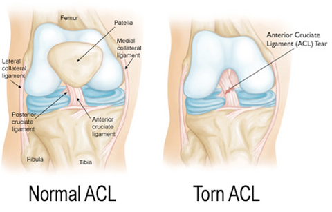 Diagram Of Torn Acl : acl injuries for best acl knee brace orthomen ~ A.2002-acura-tl-radio.info Haus und Dekorationen