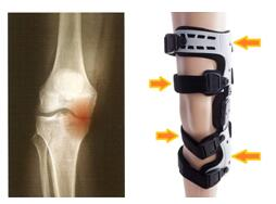 off loading knee brace