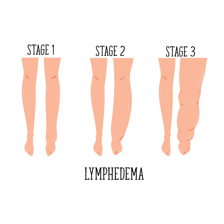 Benefits Of Compression Socks On Lymphedema Skineez Skincarewear