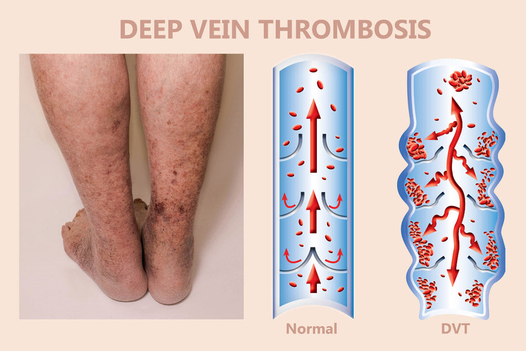 Medical Compression Deep Vein Thrombosis