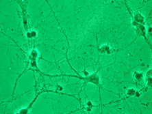 GFP Expressing Human Dermal Lymphatic Microvascular Endothelial Cells