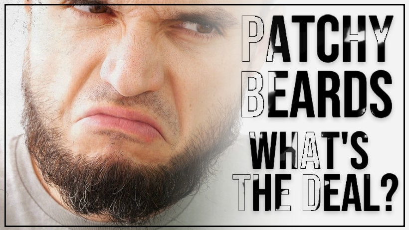 Patchy Beards – What's the Deal?