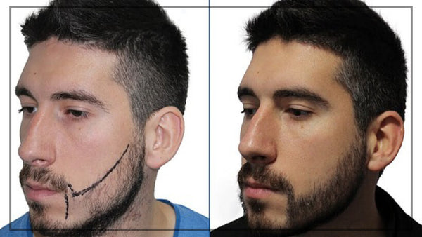 Beard transplant process follicles