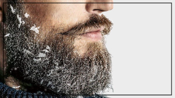 Dealing With Beard Dandruff: How To To Cure And Prevent White Flake Woes