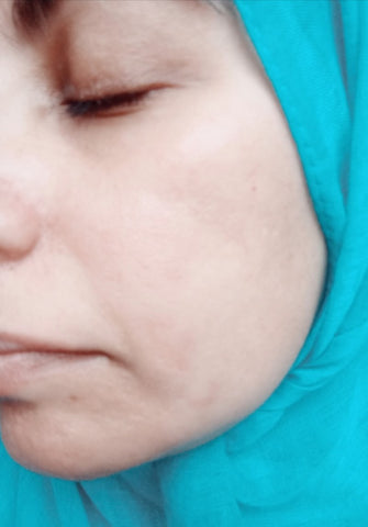 The Little Fair Trade Blog, Fair Trade Ethical Living, My acne journey, review of Odylique 3 in 1 Maca Mask and the Facetheory Acne Range with Sabeena Z Ahmed