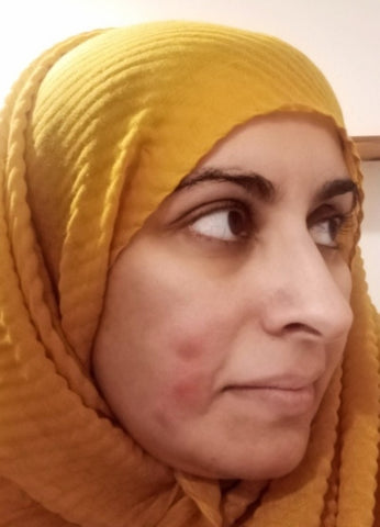 Living with Cystic Acne with Sabeena Ahmed