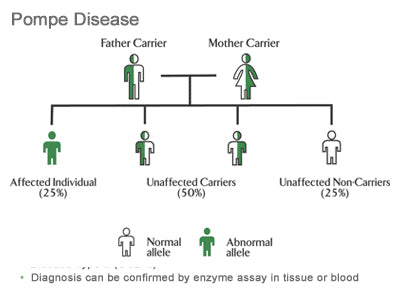 Pompe disease causes and symptoms